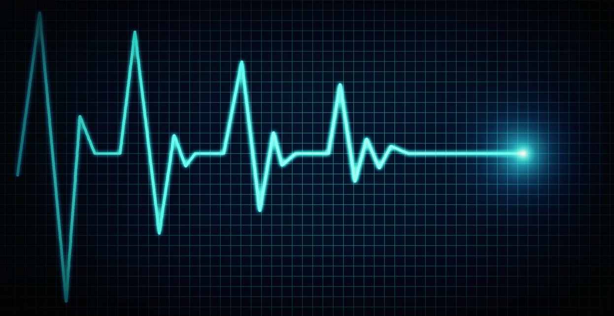 heart waves on monitor